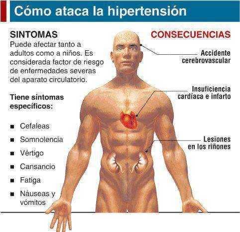 Hipertensión Arterial Sintomas Reseñas y consejos