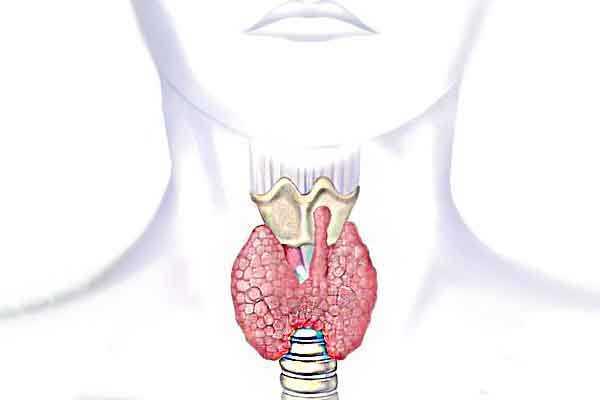 La la tiroides que si pasa tomo me pastilla para no