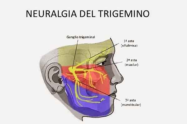 trigemino