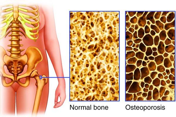 La leche destruye los huesos desde el interior